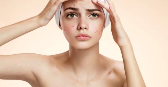 10 greșeli aparent inofensive care înrăutățesc acneea